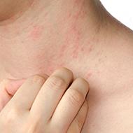 inflamação na pele